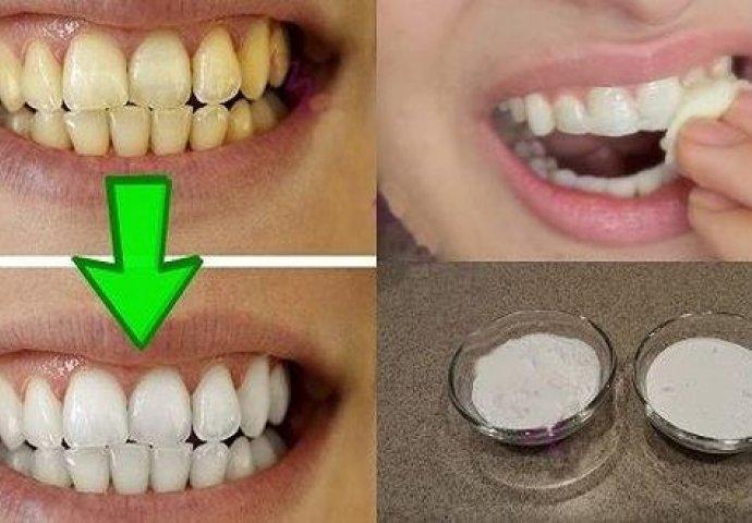 Izbelivanje zuba