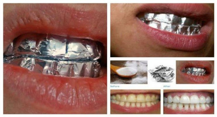 wrap-your-teeth-with-aluminum-foil-and-see-the-magic