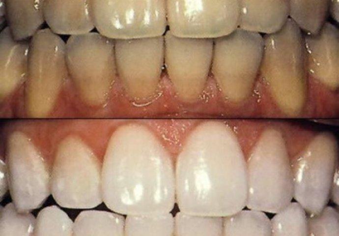 Najbolji zubar novi sad forum