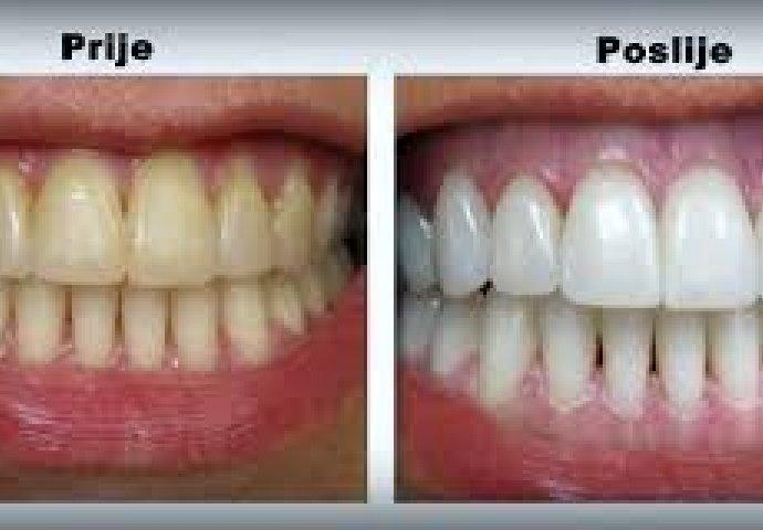 Nega zuba posle vadjenja
