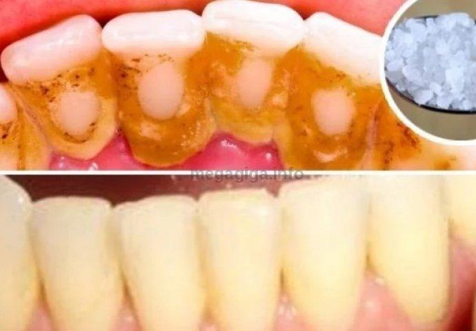 Izbjeljivanje avitalnog zuba