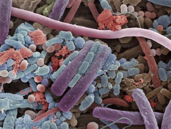 bakterije-kao-sto-su-laktobacili-povezane-su-sa-zubnim-karijesom-i-mogu-izazvati-bolest-desni-8