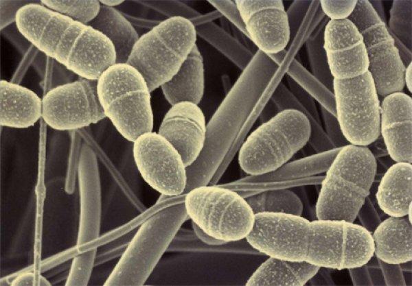 bakterije-razlicitih-vrsta-mogu-se-videti-na-slikama-u-razlicitim-bojama-i-oblicima-7