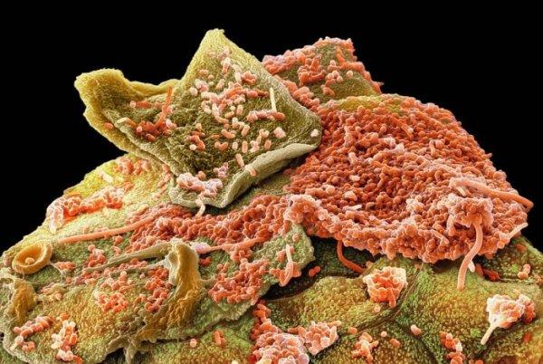 neki-oblici-bakterija-kao-sto-su-streptokoke-pridrzavaju-snazne-desni-i-obraze-ali-ne-i-zube-5