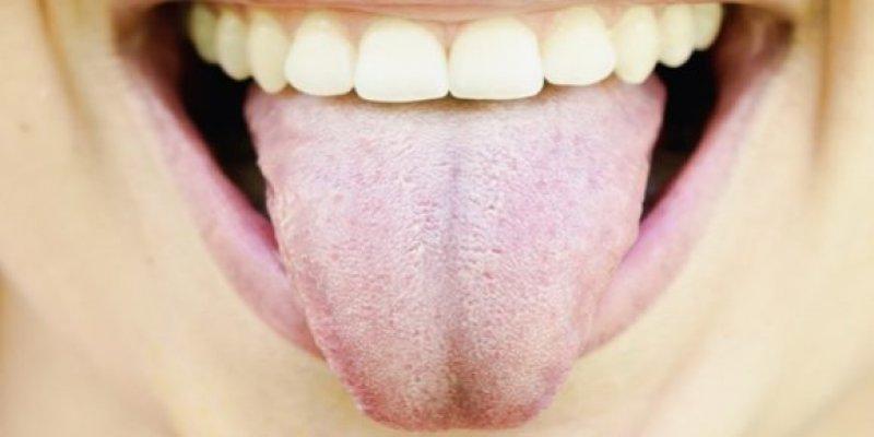 bijeli-jezik-1-580x290