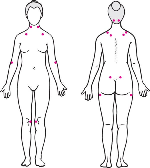 fibromialgija-slika