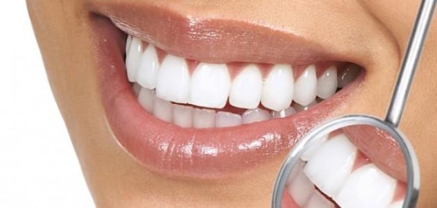 Prirodno beljenje zuba