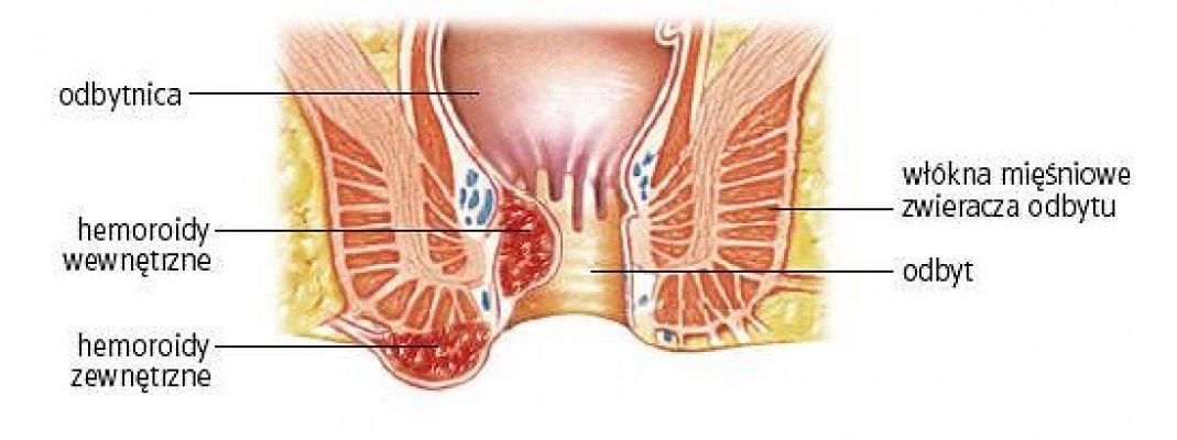 z9201294q-hemoroidy-zewnetrzne-i-wewnetrzne-powiekszenie-sp