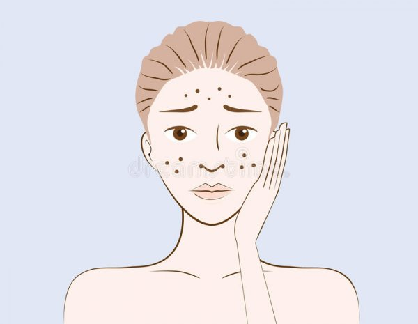 beauty-women-have-problem-acne-skin-face-cartoon-version-53914313