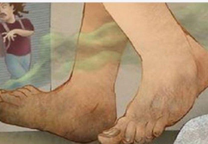 AKO VAM NOGE SMRDE, ONDA IMATE OZBILJAN PROBLEM: Vašem organizmu nešto  nedostaje | Novi.ba
