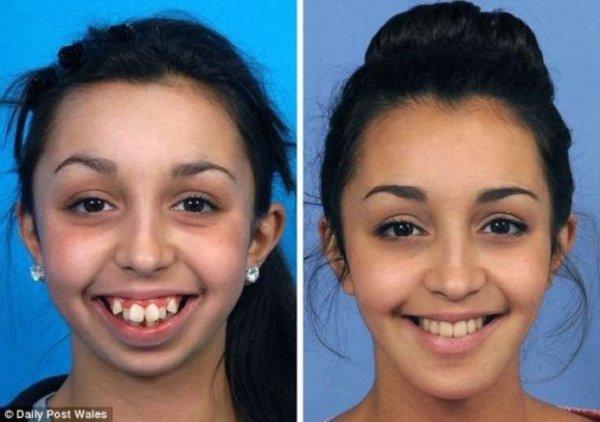 dientes088-622x438