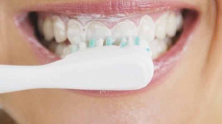 Zubne navlake pre i posle
