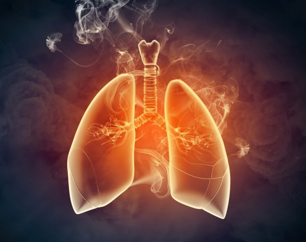 lungs-smoke-cancer-oncology-news-australia