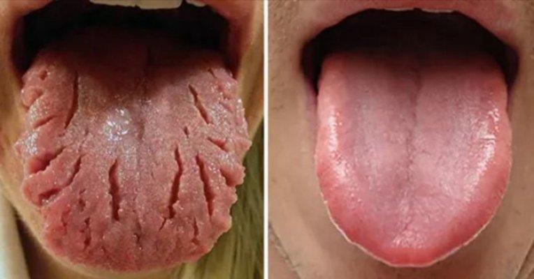 jezik-zdravlje