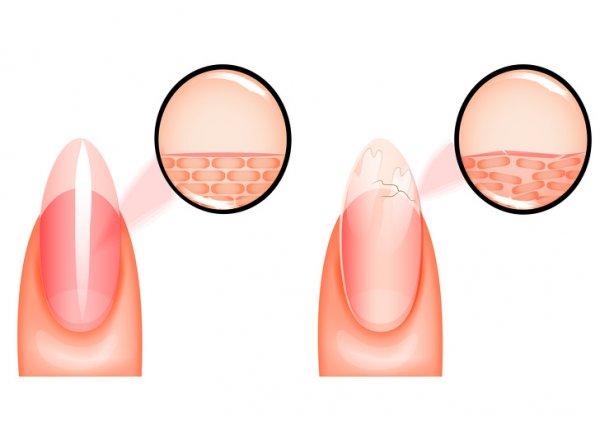 krhki-nokti