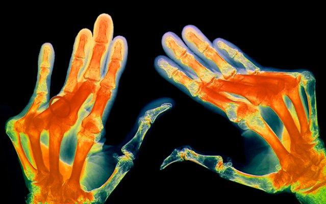 rheumatoid-arthritis1
