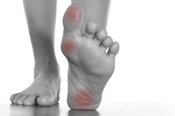 rheumatoid-arthritis2