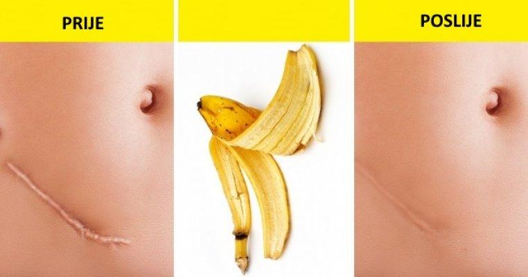 bananansl