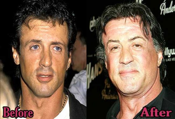 sylvester-stallone-plastic-surgery-before-and-after