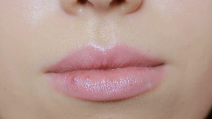 herpes-on-the-lips1