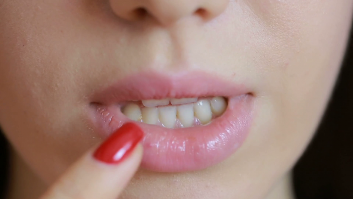 herpes-on-the-lips3
