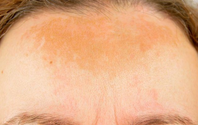 hyperpigmentation-causes-1500035603