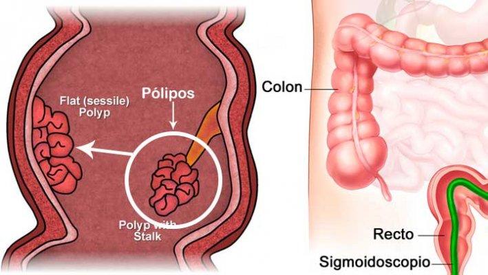 polip1