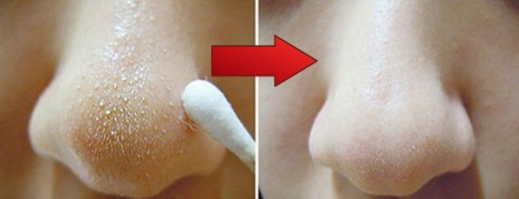 15840710-remedy-to-remove-blackheads-on-nose-1502091510-650-c686809064-1504531686