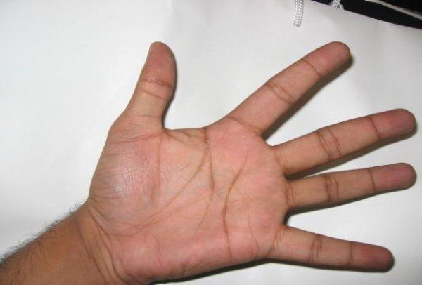 lijevi-dlan