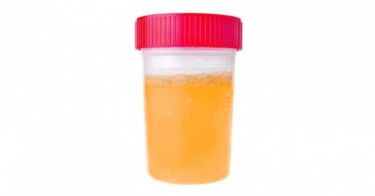 urin1