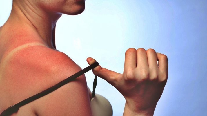 tanned-skin-sun-how-to-get-rid-of-tan-lines-feature-ss