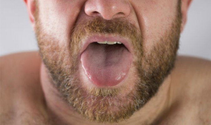 tongue-cancer-early-signs-1187805