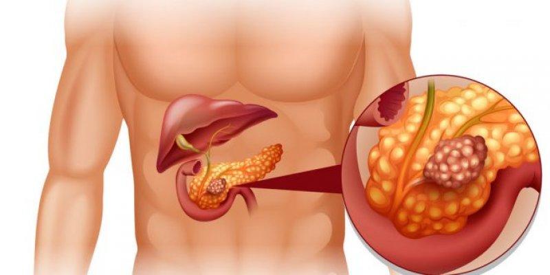 cancer-de-pancreas-y-la-alimentacion-660x330