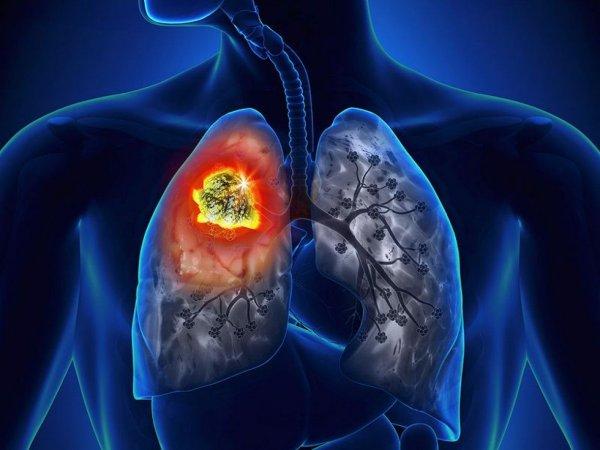 pluca-rak-karcinom-tumor