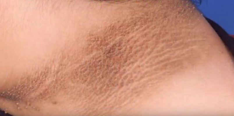 acanthosis-nigricans-1000x0