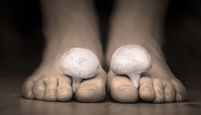 atletsko-stopalo-i-gljivice-na-stopalima
