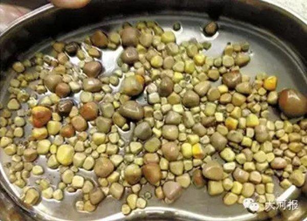 kamenje-u-bubregu