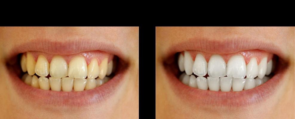 Beljenje zuba novi sad cena