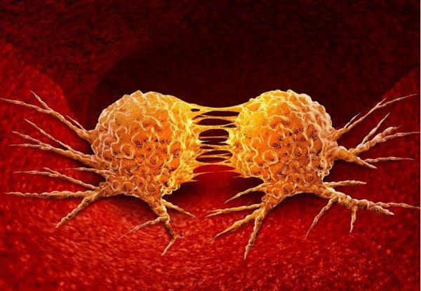 rak-dojke-stanice-1200-123rf