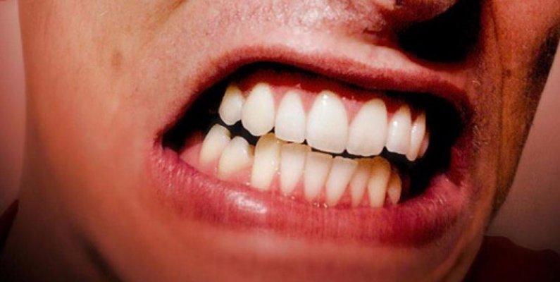 skripanje-zubima-compressed