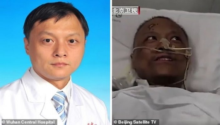 wuhan-doctors-who-were-critically-ill-with-covid-19-wake-up-to-find-that-their-skin-has-turned-dark-after-the-virus-damaged-their-livers