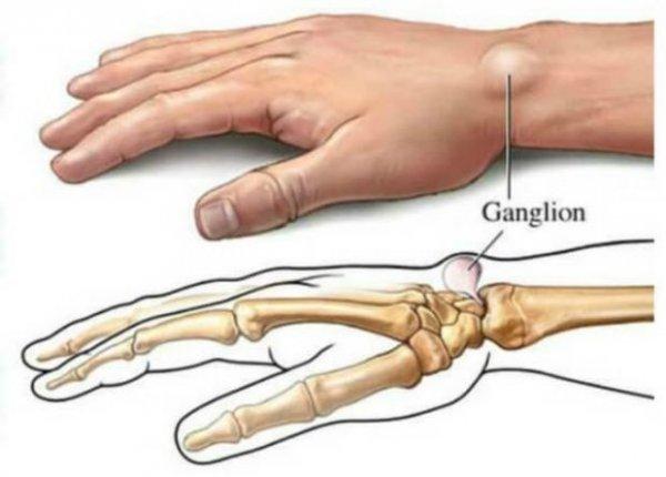 ganglion-2