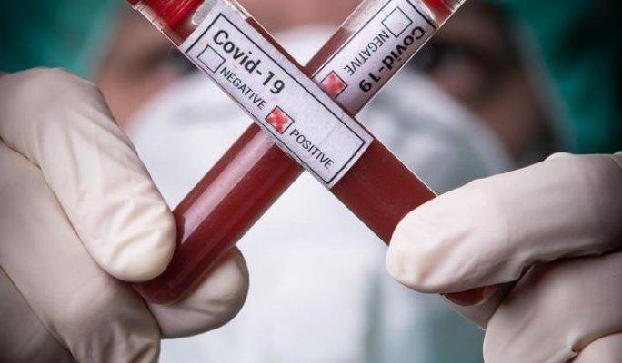 testiranje-na-koronavirus-epruvete-epruveta-test-0058877a4ce4123752e89e81805d75a0-view-article