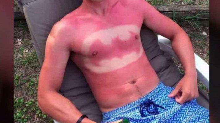 20-ridiculous-examples-of-sunburn-art-1
