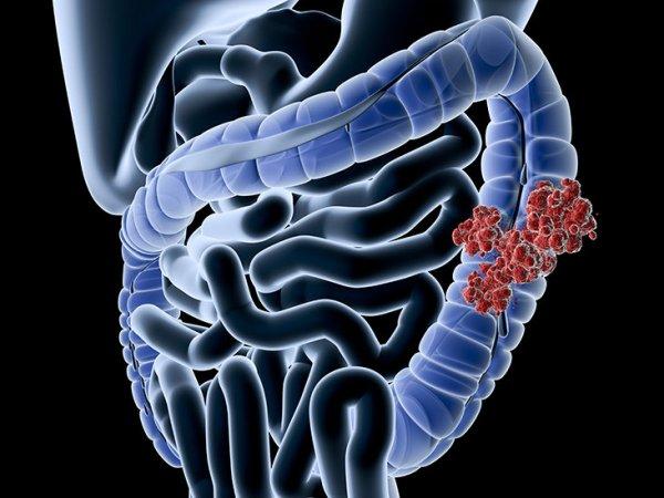 colorectal-colon-cancer-732x549-thumbnail-2-732x549