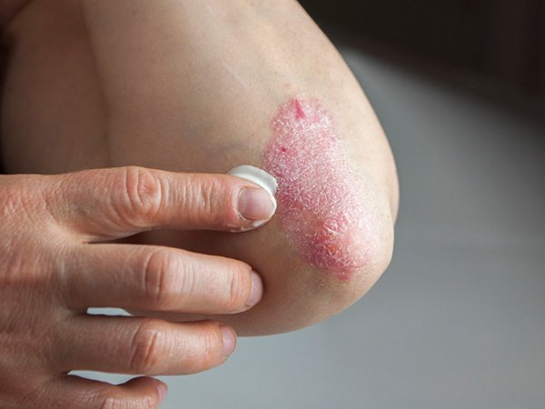 gettyimages-497413495-thumb-732x549