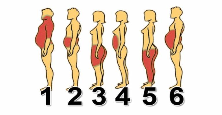 types-of-obesity1
