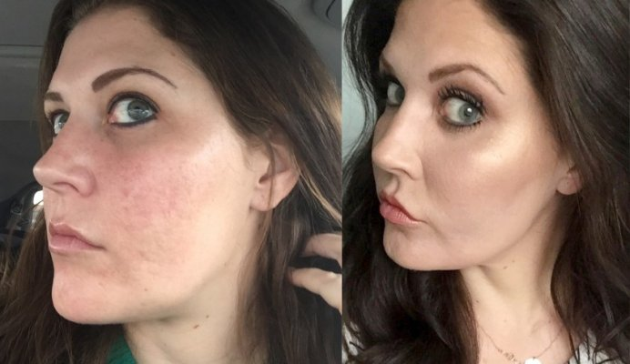 utah-before-and-after-co2-laser-resurfacing